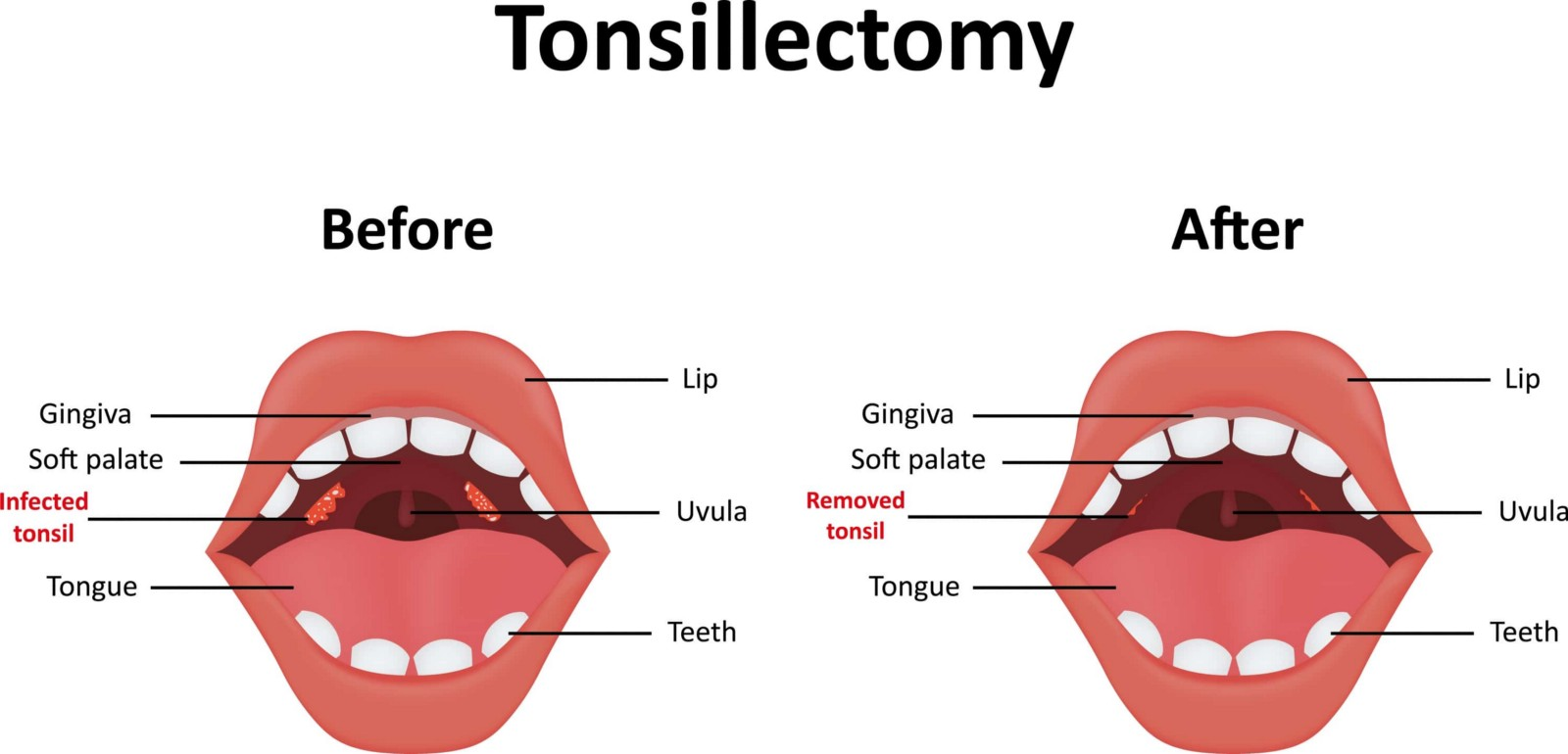 Coblation Tonsillectomy To Stop Snoring Stella Maxwell Medium
