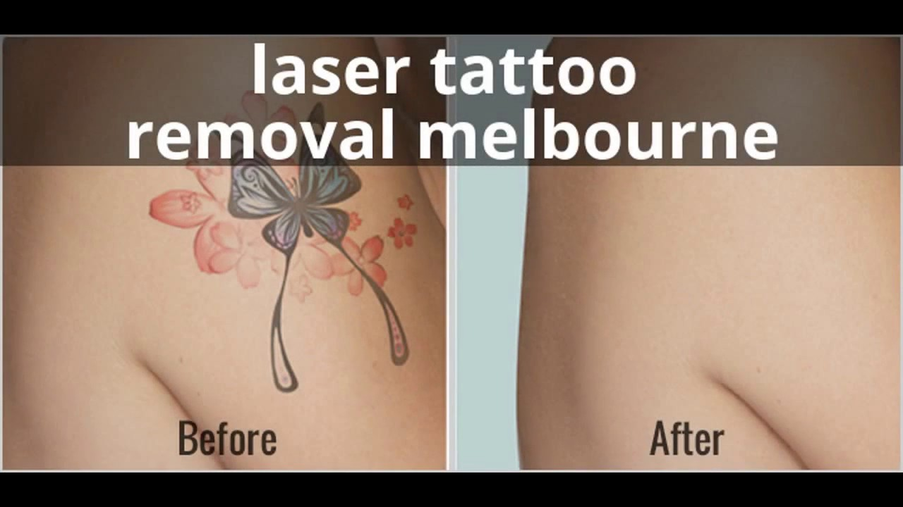 Benefits of availing laser treatment from tattoo removal clinic ...