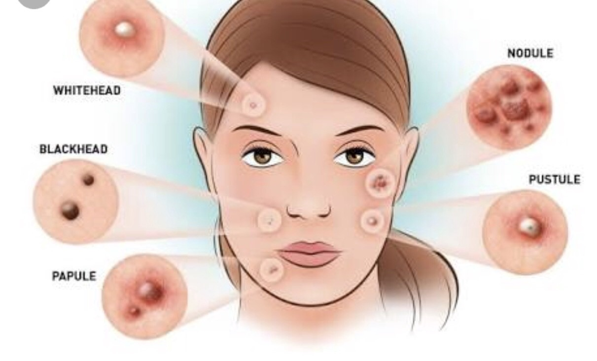 An Overview of Acne advise