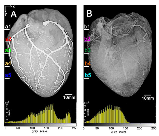 First Images of a Heart Injected with Liquid Metal