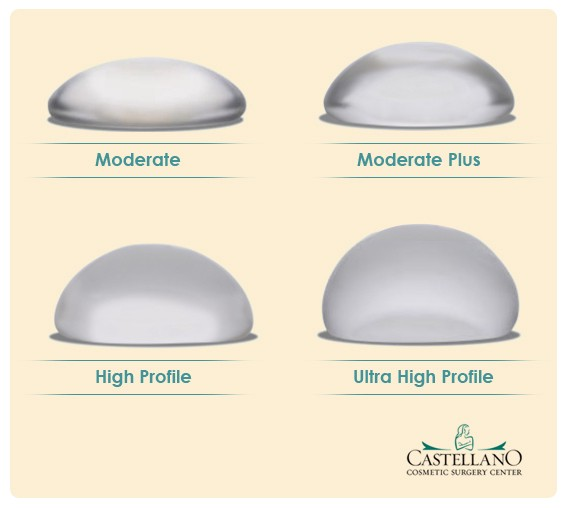 profile breast implant high