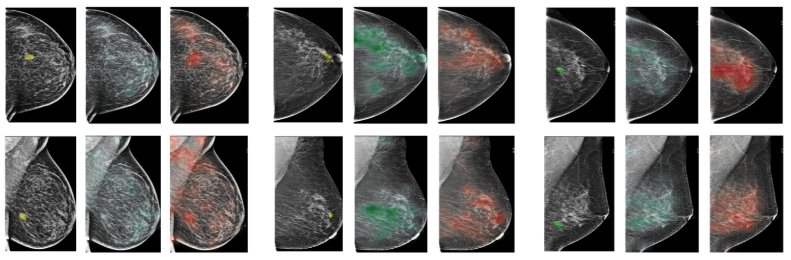 Deep Neural Networks Improve Radiologists' Performance in Breast Cancer Screening