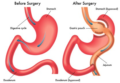 sleeve gastrectomy risks, complications & treatment, Skeleton