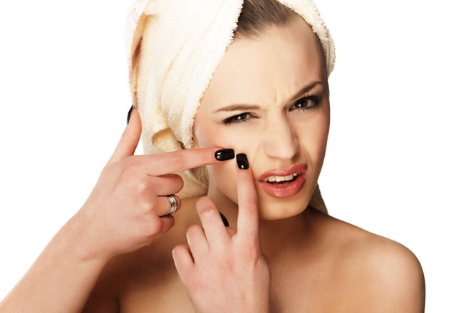 How to get rid of Acne Naturally: Skin Care
