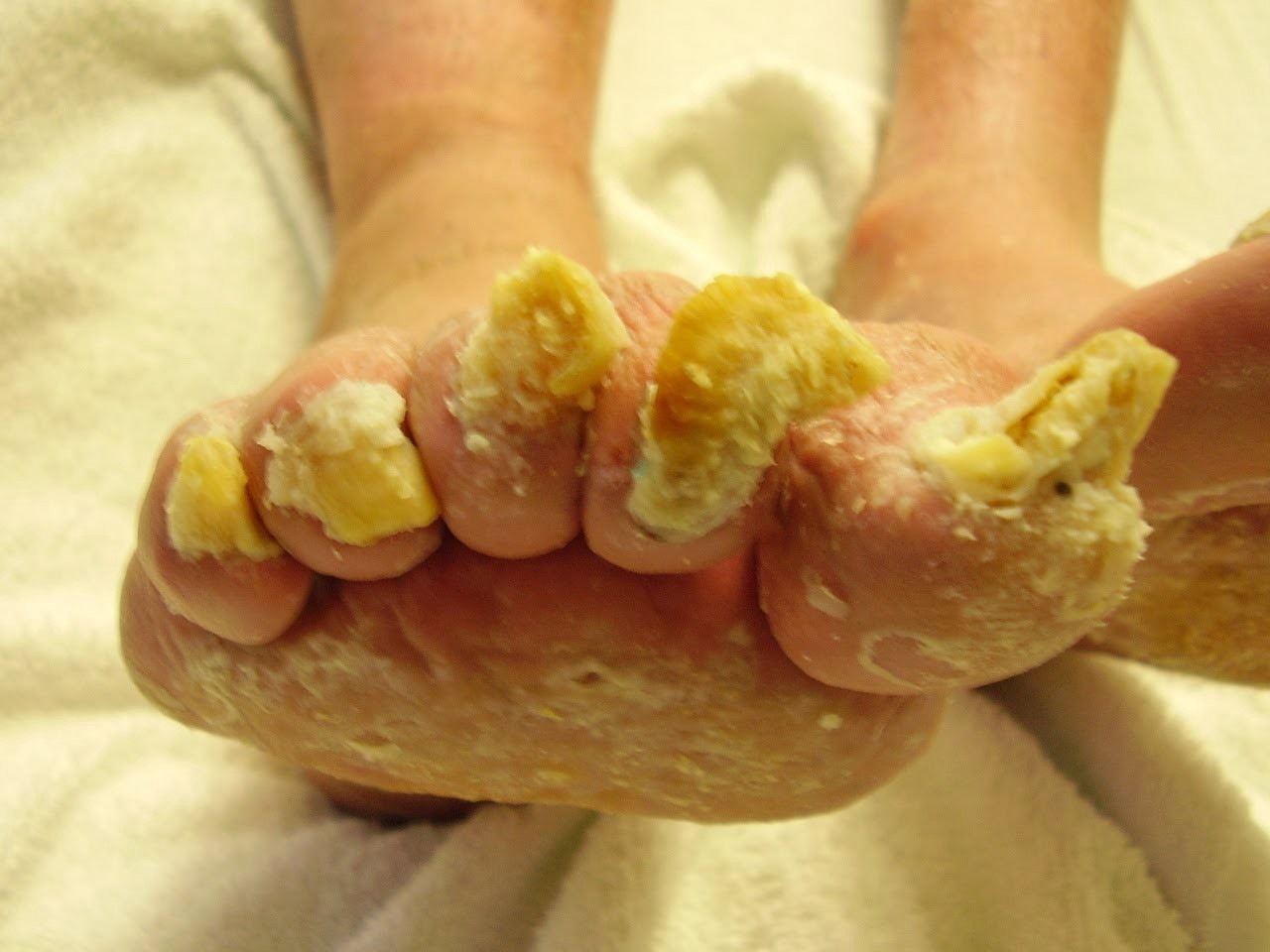 Nail Fungus Revealed Cathy Robbins Fungual Elimination Guide 2017