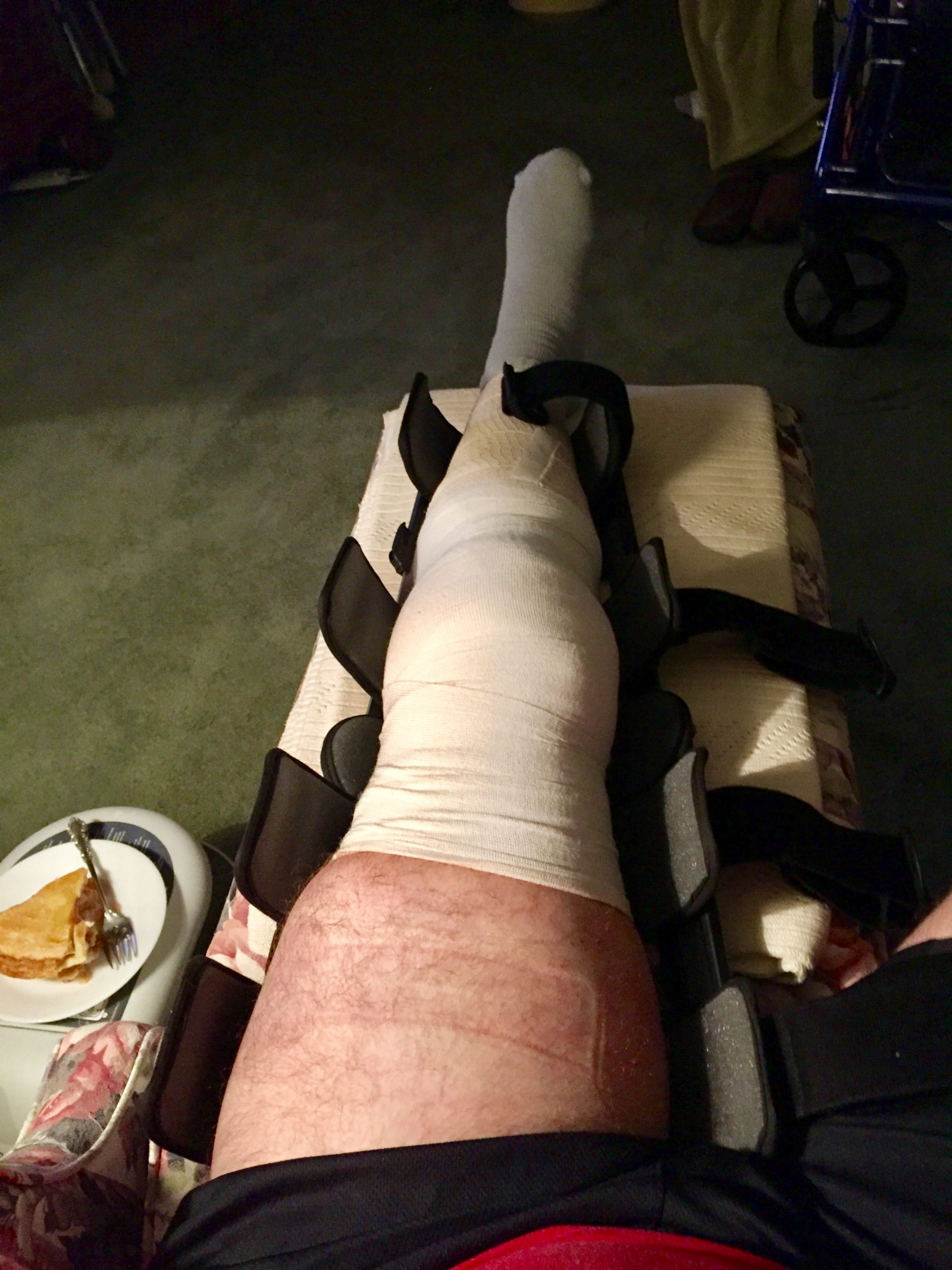 c9f5b7a0d8 The top of the dressing had slowly worked its way down my thigh, but it was  still secure and covering well beyond the knee. I hadn't even unlocked the  ...
