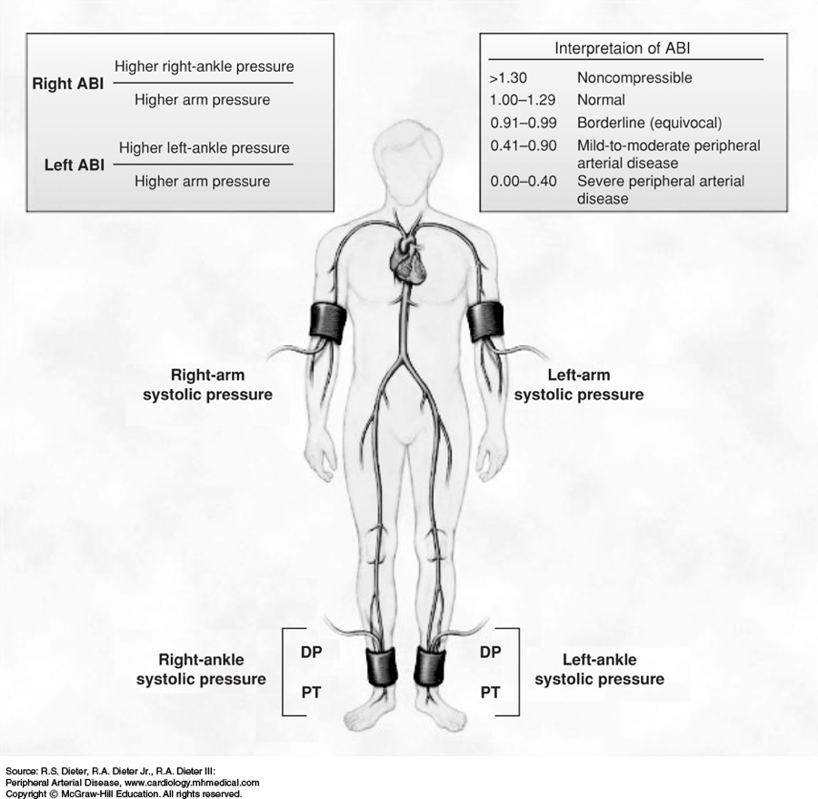 Quantaflo A Reliable Alternative To Abi Testing And Ankle