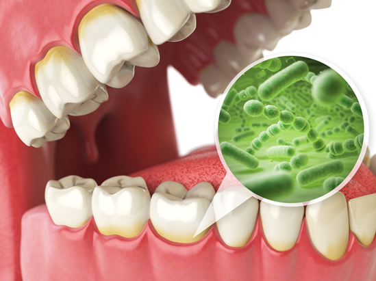 Most Effective Natural Gum Regrowth Products Dr Colleen Richie