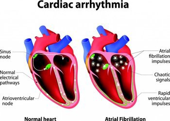 Types Of Heart Diseases That You Must Know Fred Staire Medium