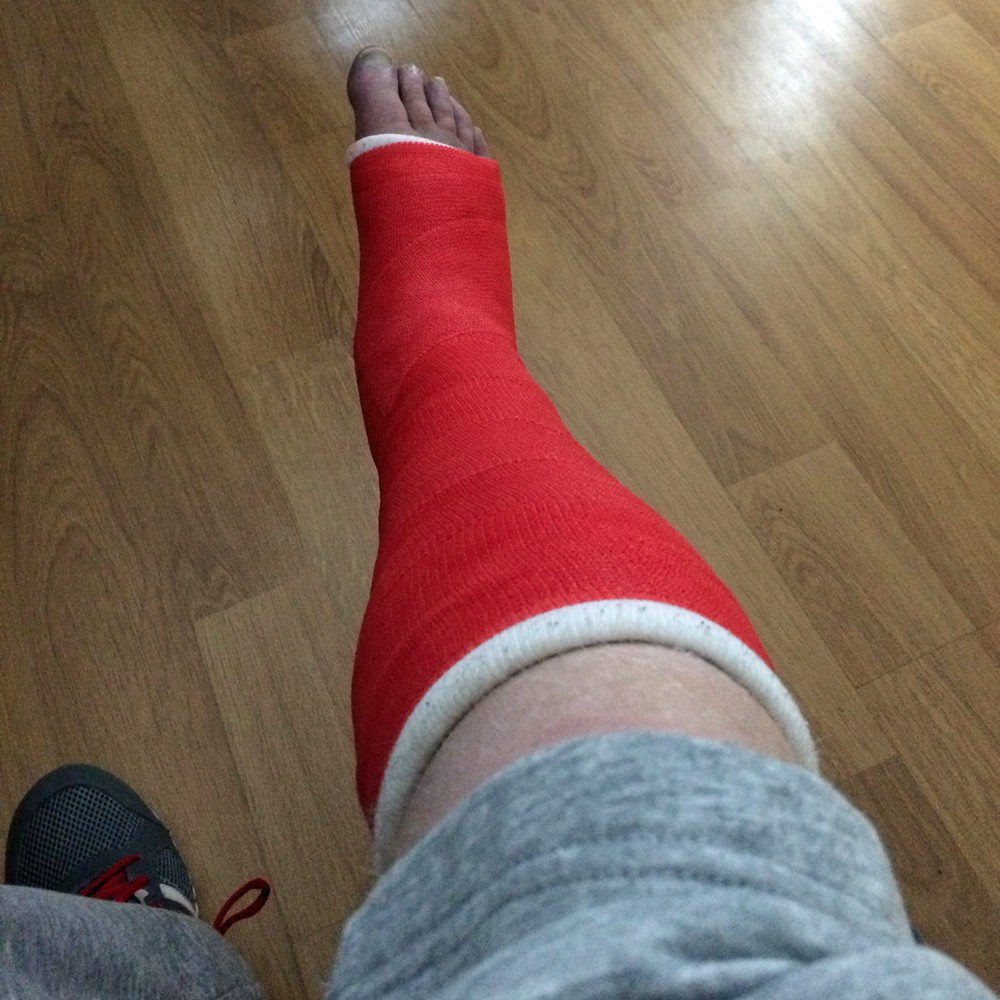 Fracture fracture, how much to wear a gibs and generally explain how it is