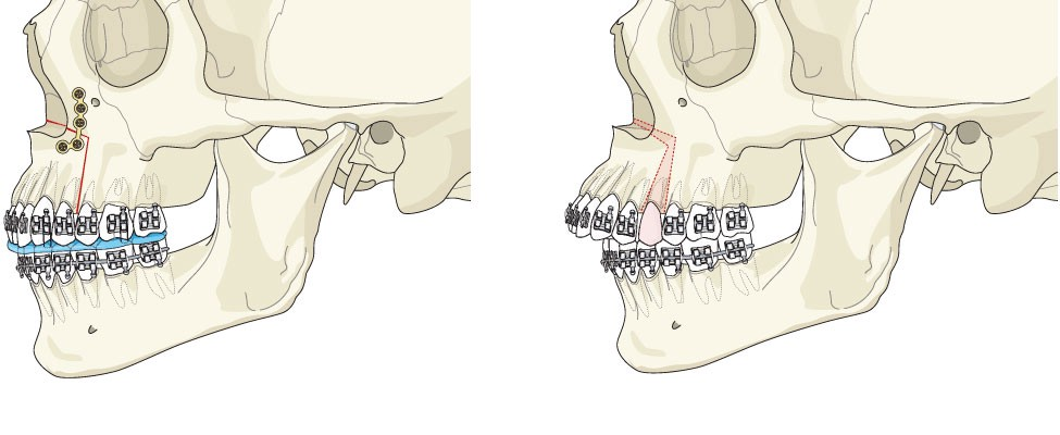 Adventures in Jaw Surgery – Natalie Armendariz – Medium