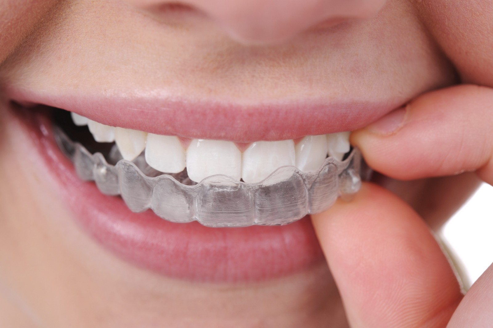 How to treat your teeth