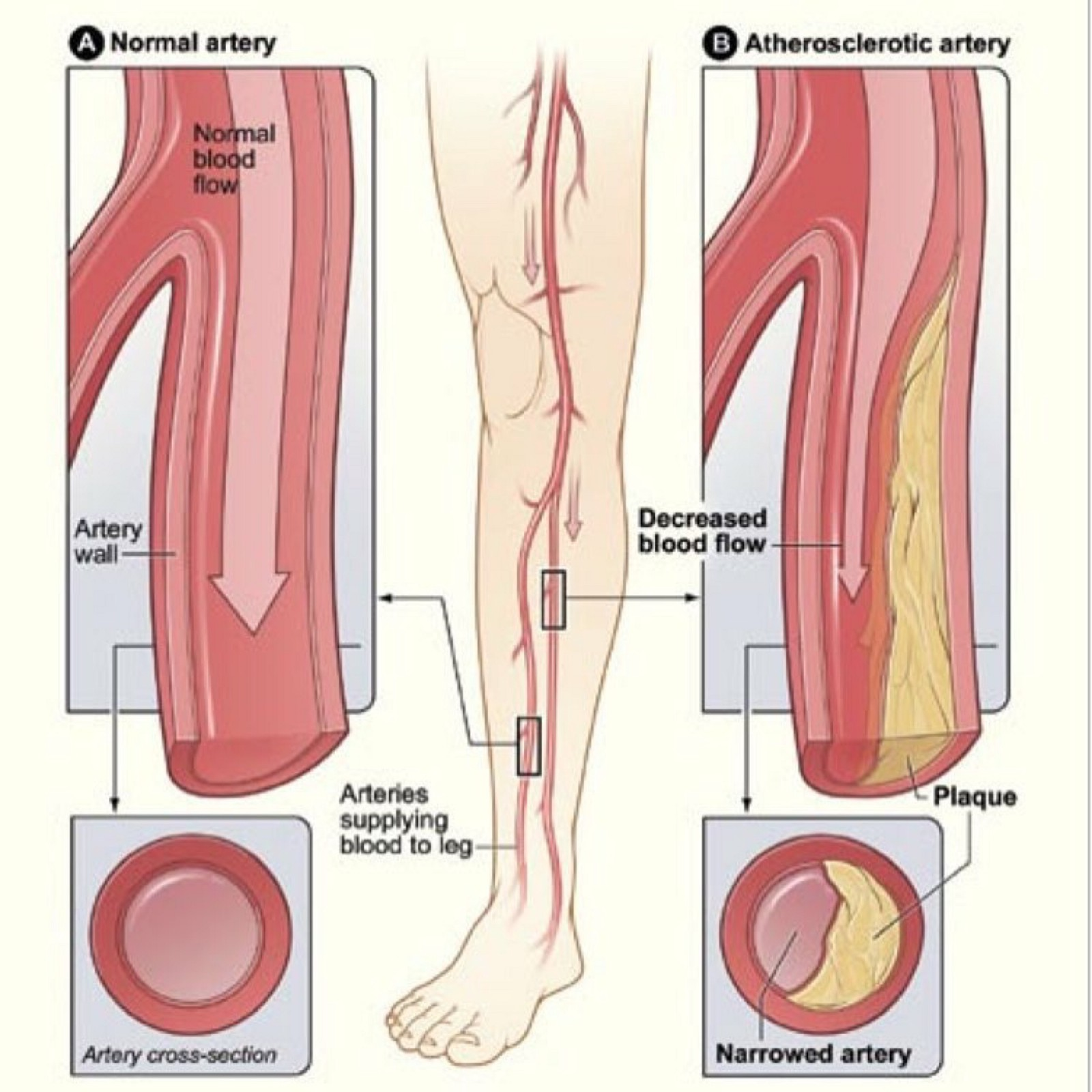 Vascular Disease — One Event Leads to Another. – Dr. Vigen V ...