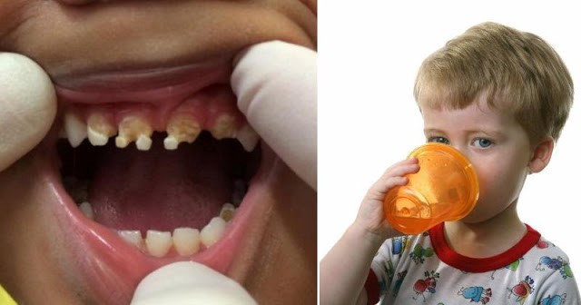 Parents Shocked By What Caused This Child's Massive Tooth Decay