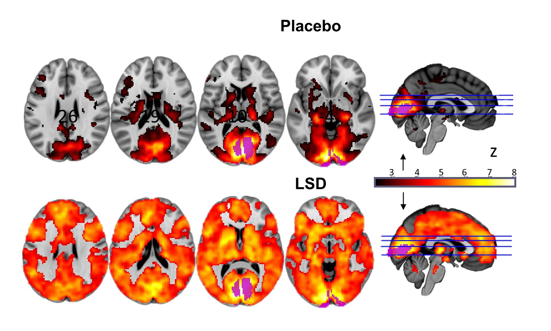 The times when all the LSD in the world were made by one person