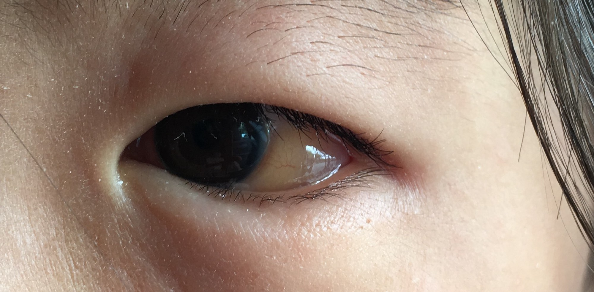 The sclera is changing color...