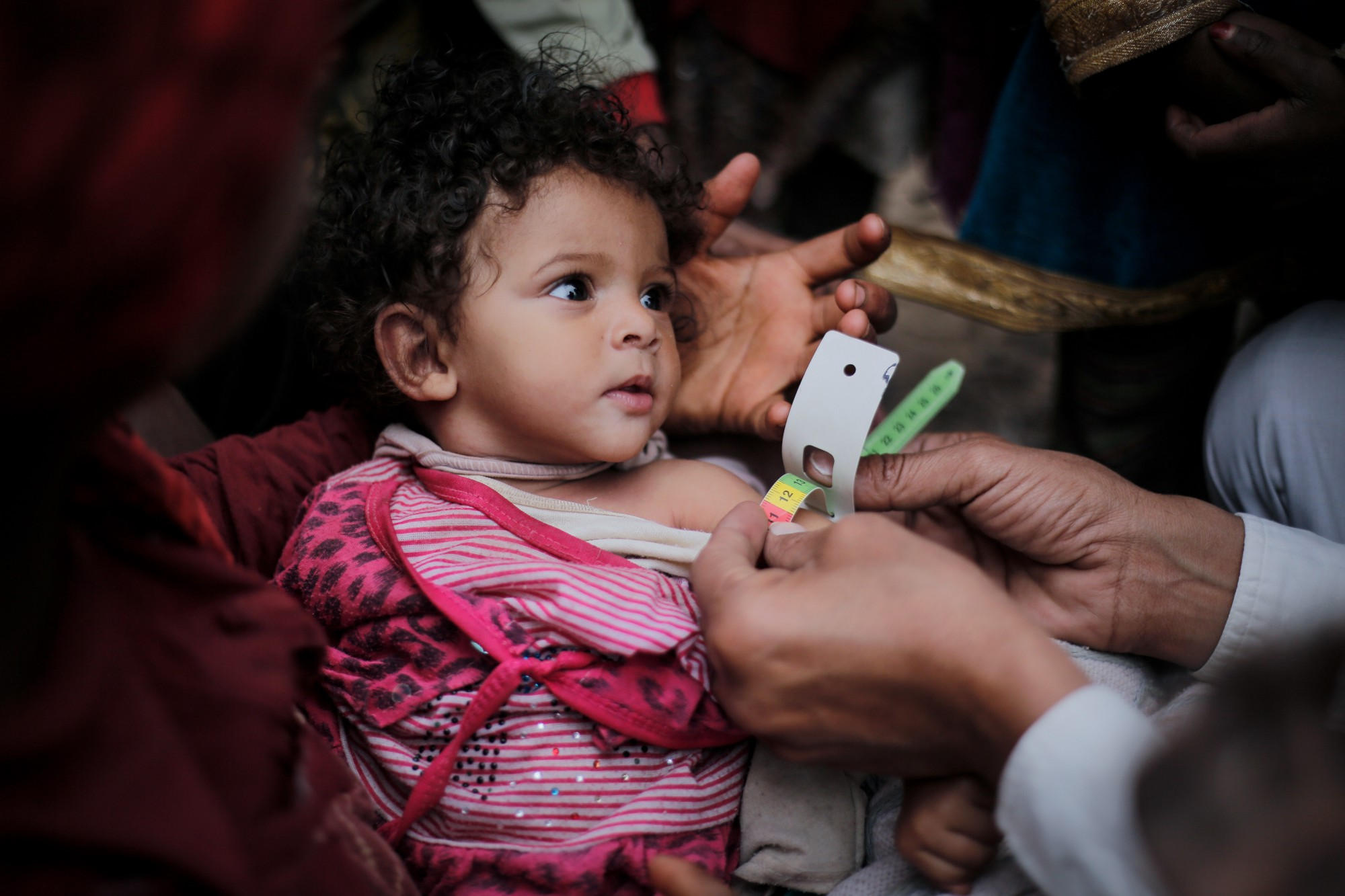 In Yemen, more than two million children are malnourished, including this young girl who is being treated by our partner UNICEF. Medical staff take her arm measurements to track her progress. Photo credit: © UNICEF/Almang