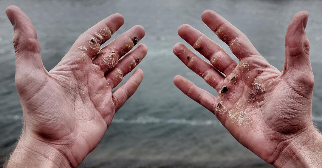 How to Prevent Rowing Injuries