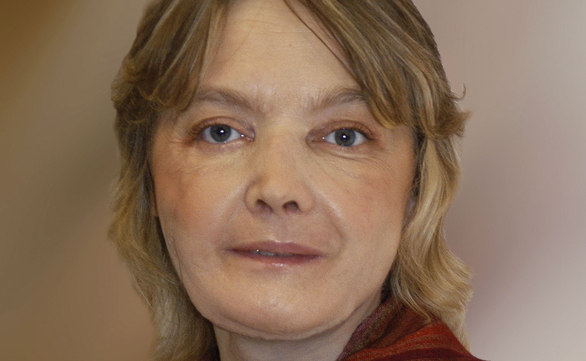 Shine Remarkable facial first transplant world have hit