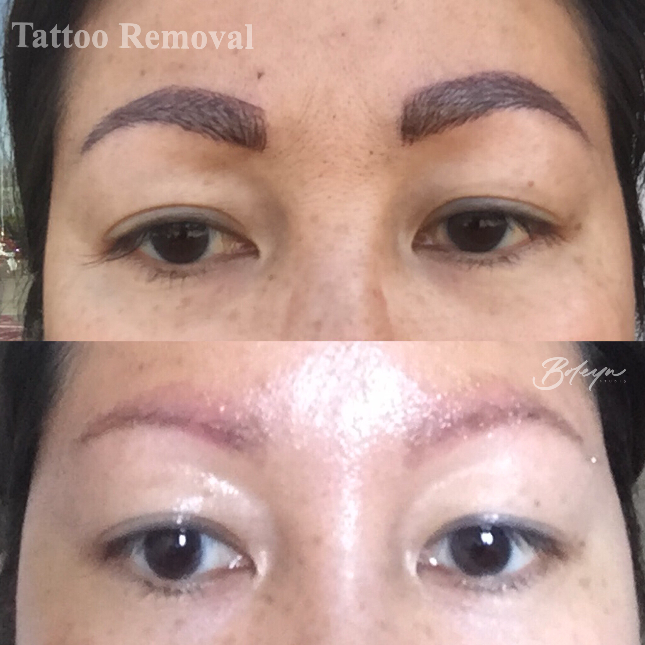 Saline Tattoo Removal – Natalia Boleyn – Medium