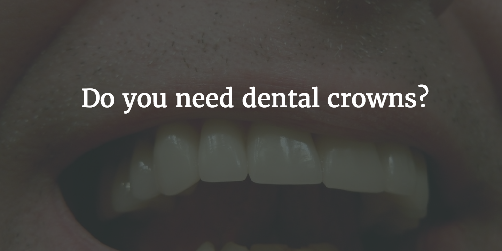 440085b5c86 Do you need dental crowns  Find out with our guide – Forever Young ...