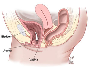 Tore urethra during sex