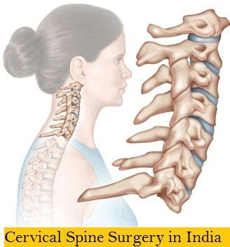 Why is Cervical Spine Surgery in India required?