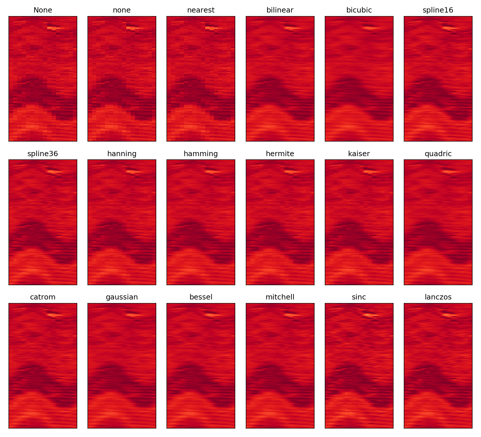 Different types of interpolation of imshow() and azimuthal density image data.