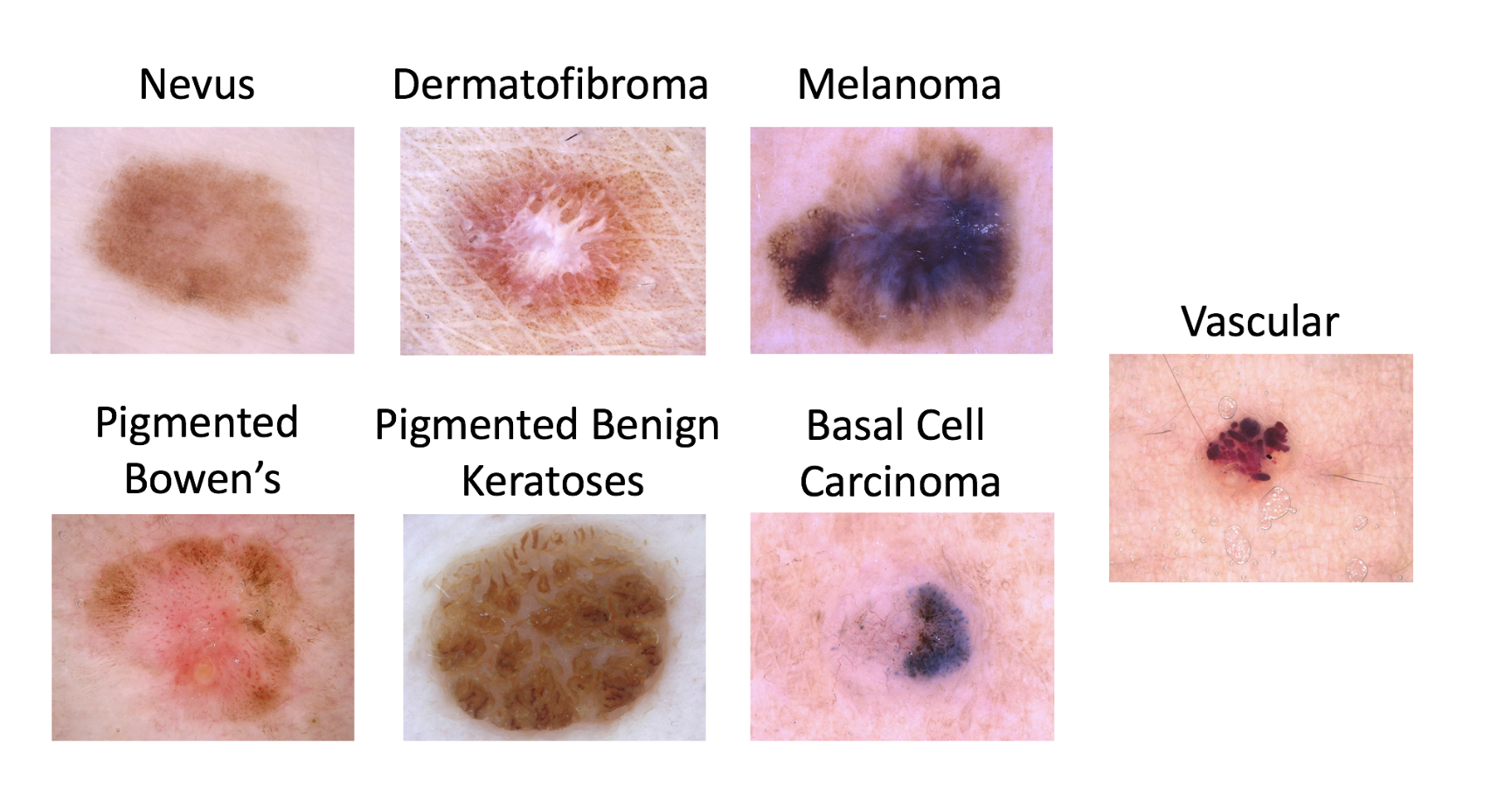 The full list of lesion types types to classify in the ISIC dataset. We'll be focusing on Melanoma vs. non-Melanoma.