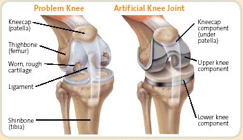 What to do after a total knee replacement hawthorn physiotherapy what to do after a total knee replacement ccuart Images
