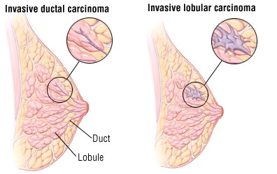 Invactice ductal breast cancer