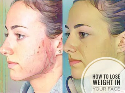 How to lose weight in the face david laroche medium surveying the need to lose facial weight ccuart Image collections