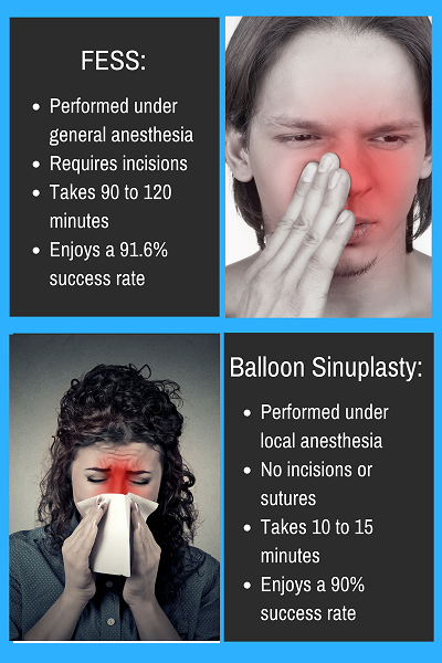 Fess Vs Balloon Sinuplasty Eisemann Plastic Surgery Center Medium