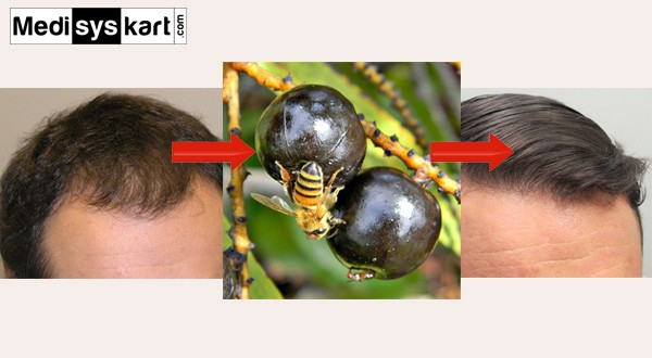 Is saw palmetto good for hair loss
