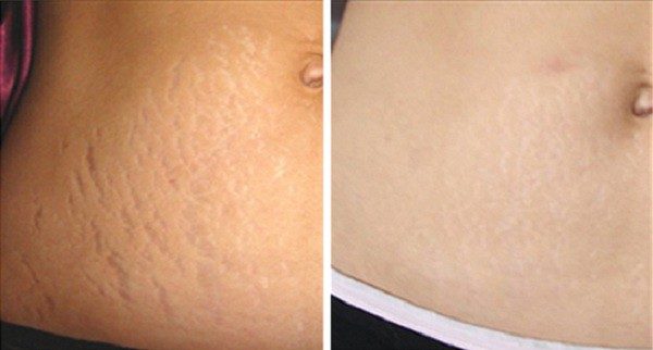 Get Rid Of Stretch Marks Naturally Igor Stanic Medium