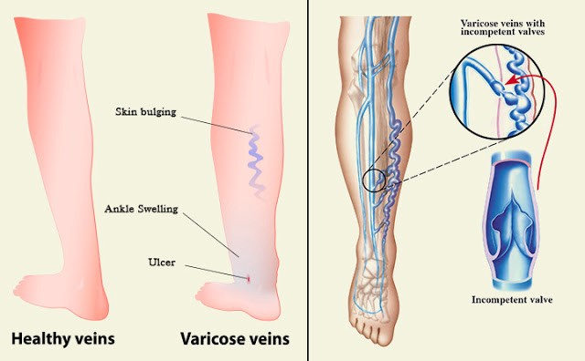 Why Laser Varicose Veins Treatment in Wellington is more effective?
