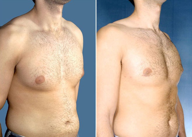 Male breast surgery cosmetic surgen