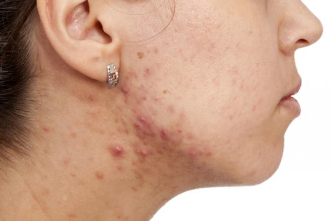 for adult acne Alternative treatment