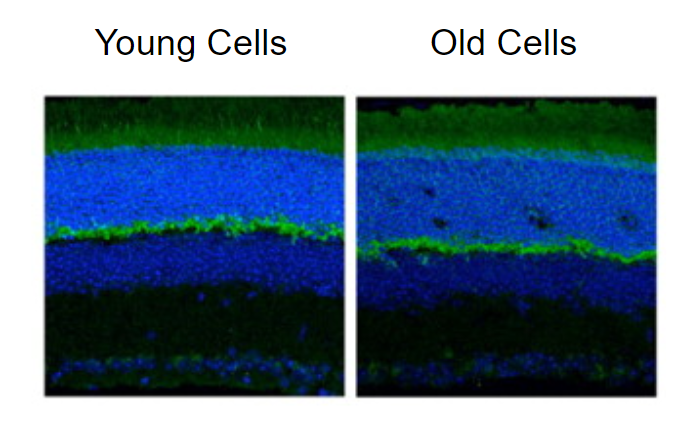 Entropy and it's impact on aging. This shows the entropic impact of young vs. old cells.