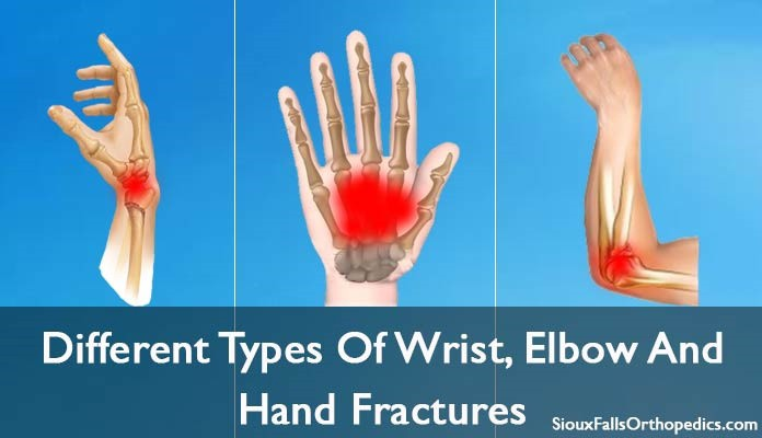 Types of Wrist, Hand and Elbow Fractures – Sioux Fall Orthopedics ...