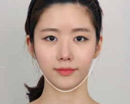 Consider, that facial bone contouring has surprised