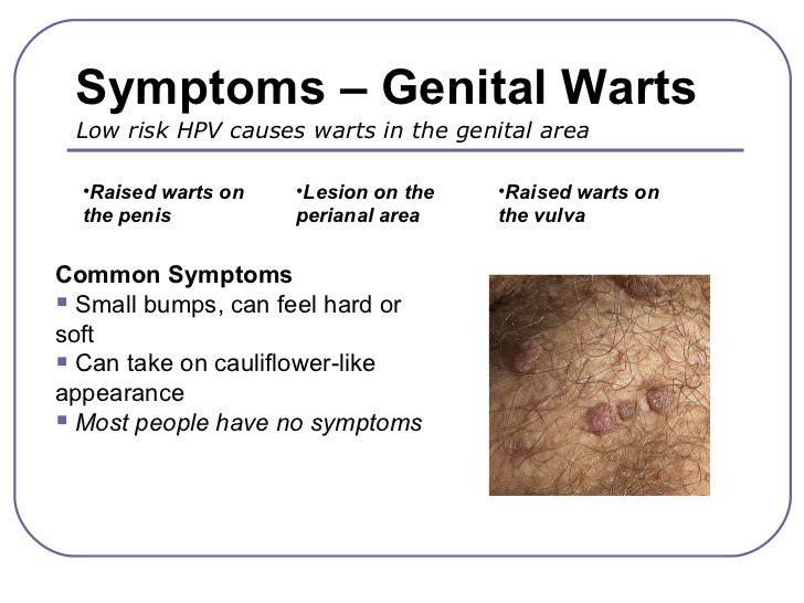 Genital Warts Non Sexually Transmitted