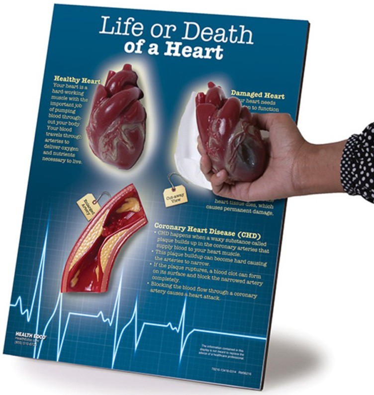 Heart Anatomy Model How Does It Help Blessings Way Behavioral