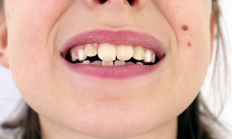 Crooked Teeth, Misaligned Bites and their solution