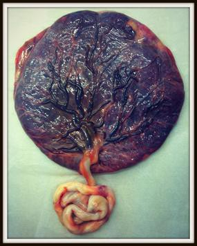a placenta and umbilical chord