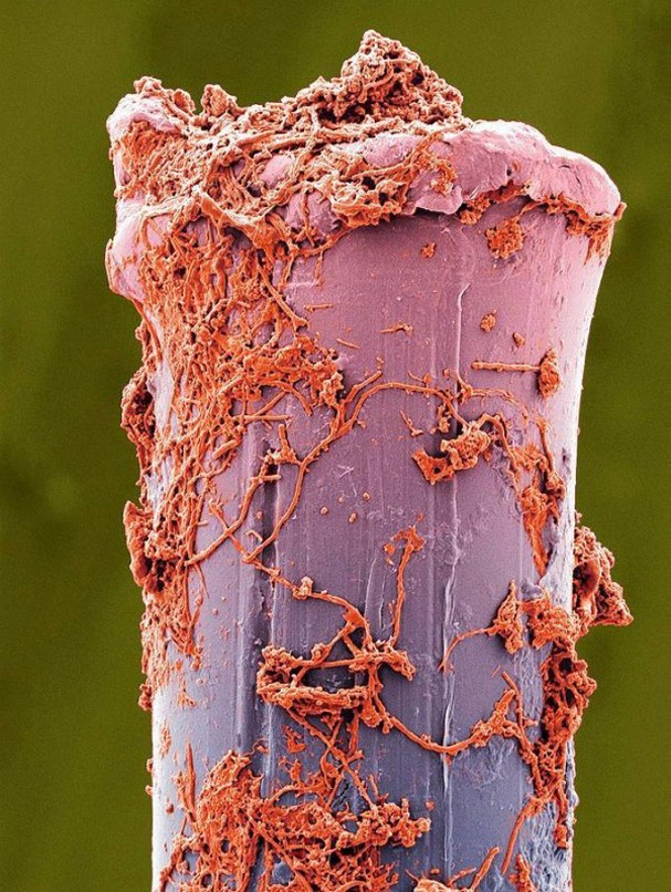 Electron-Microscope-Image-of-a-Toothbrush-Bristle-600x797