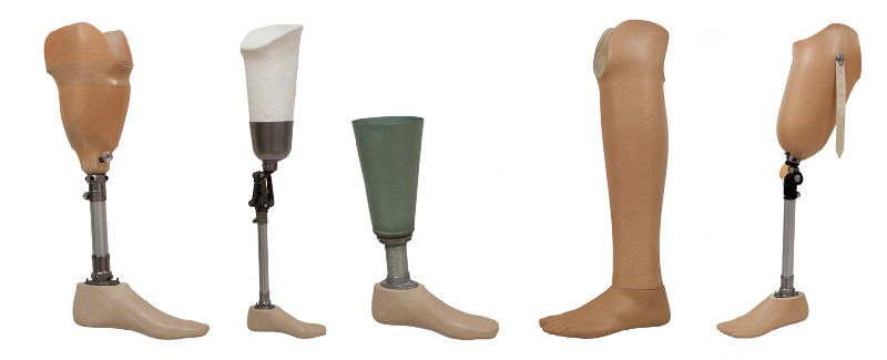 Prosthetic limbs can be customized with the help of 3D printing
