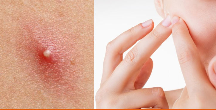 Cyst And Zit Popping — Learn The Facts Before Making Big ...
