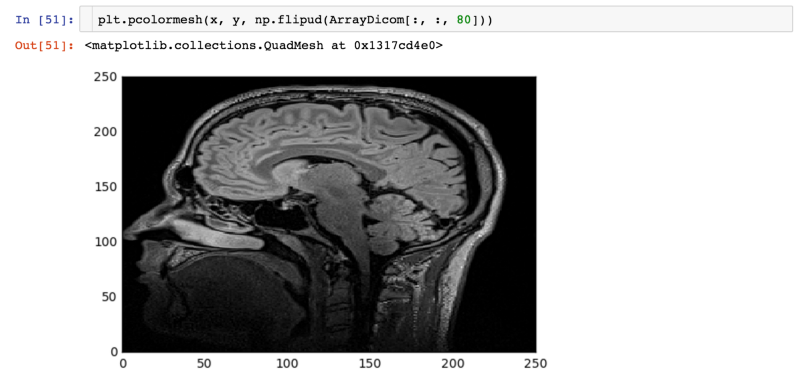 Medical Image Analysis with Deep Learning