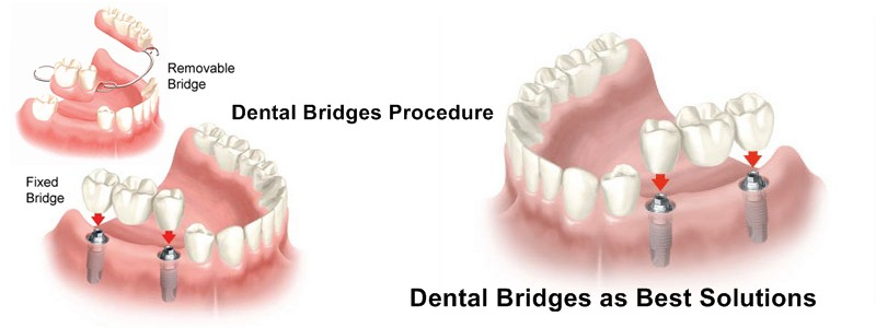 Dental Bridge Is A Prosthetic Apparatus And Used To Cover The Area Of Mouth Where Tooth Missing On Both Ends Your Dentist